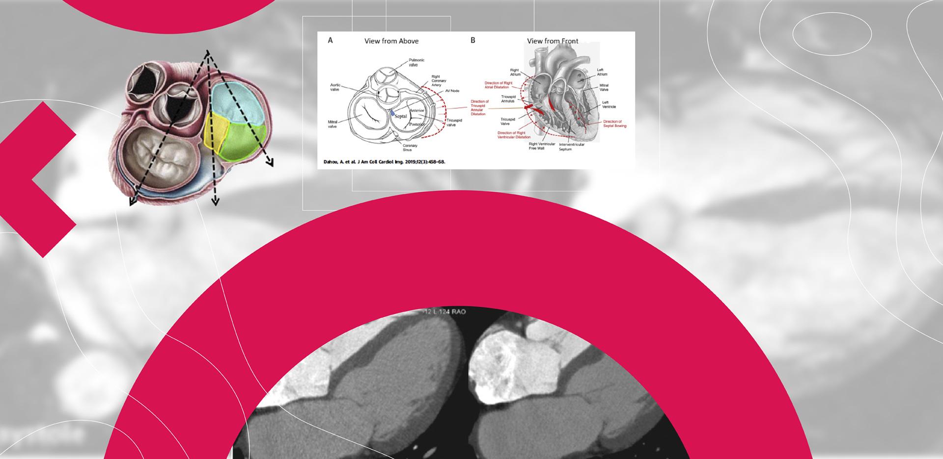 Anatomia e função da Tricúspide