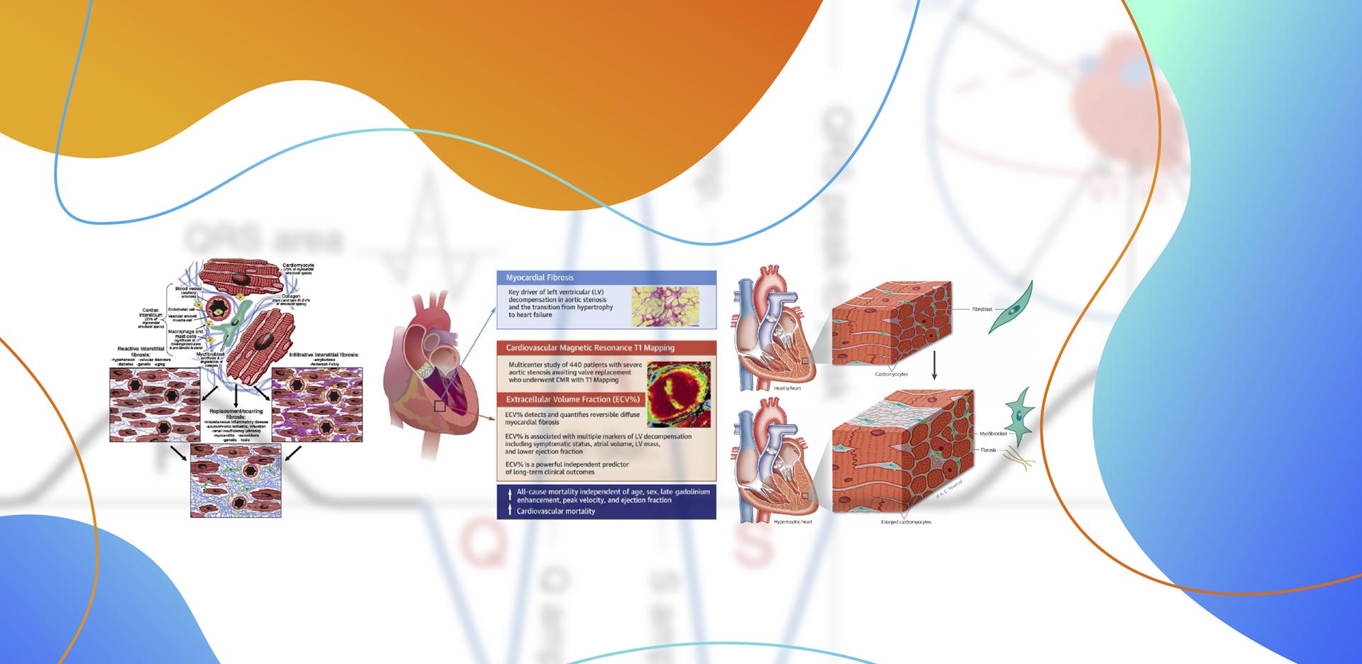 Eletrocardiograma e TAVR