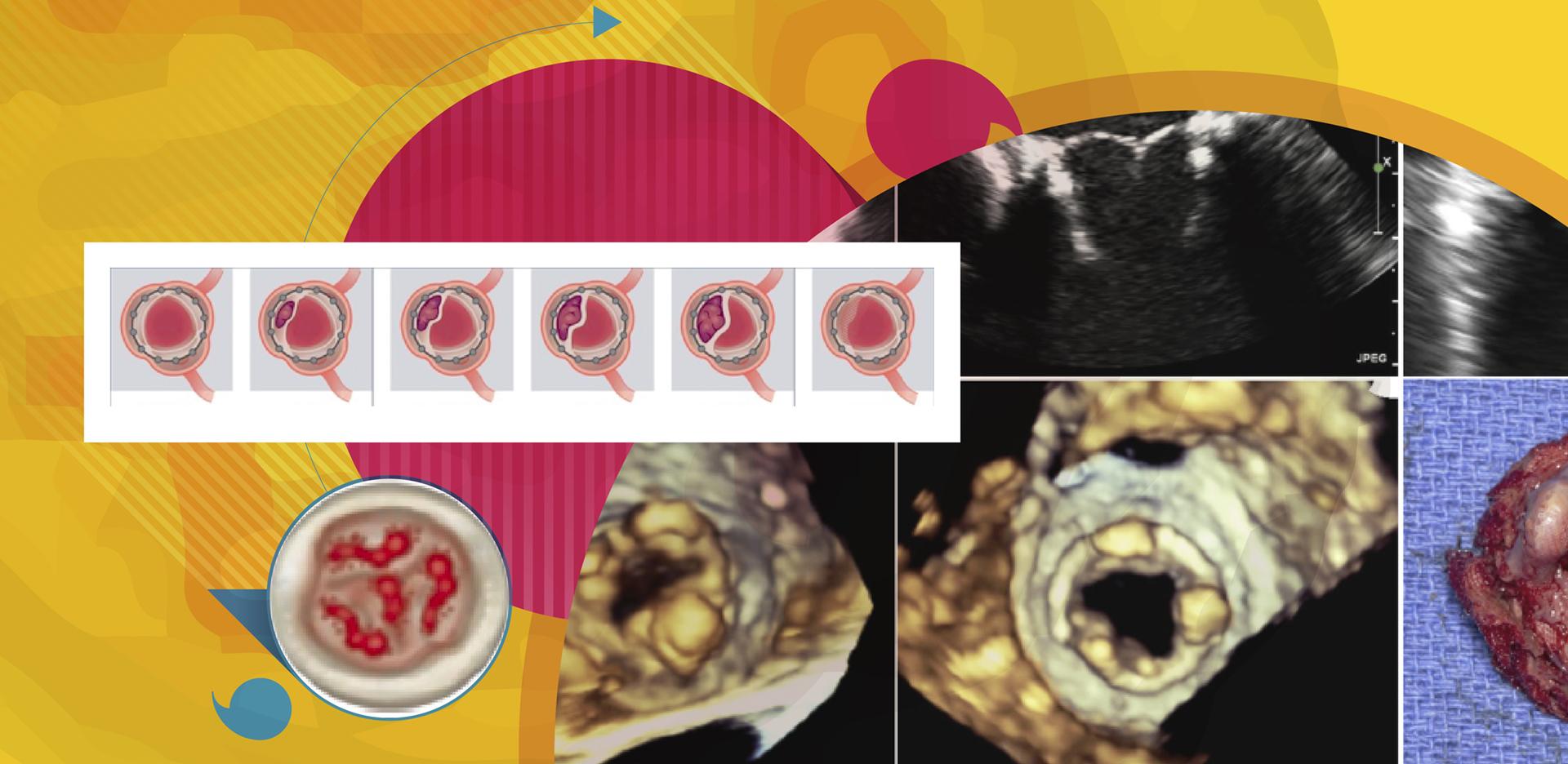 Anticoagulação de Biopróteses