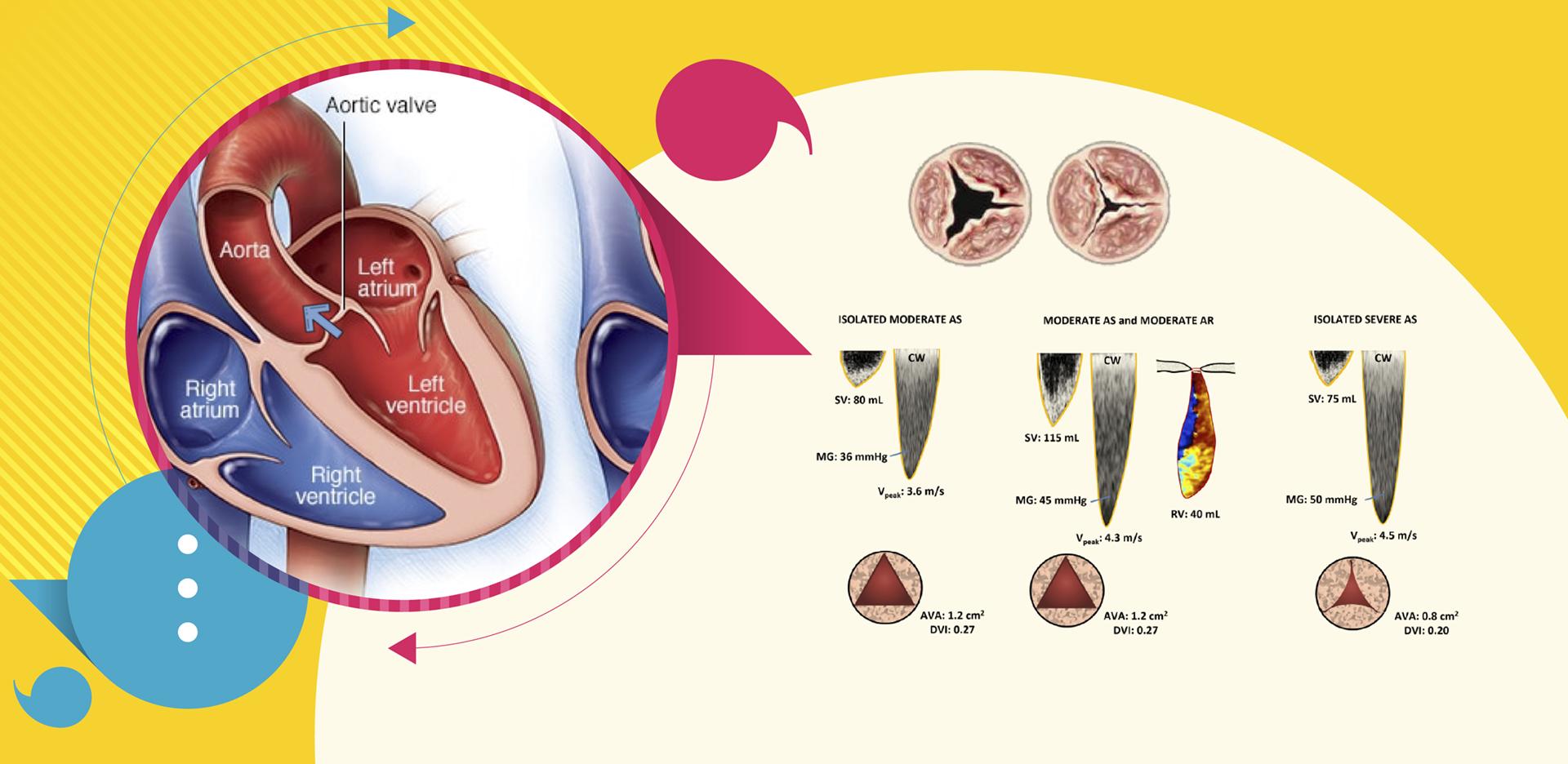 Dupla lesão aórtica