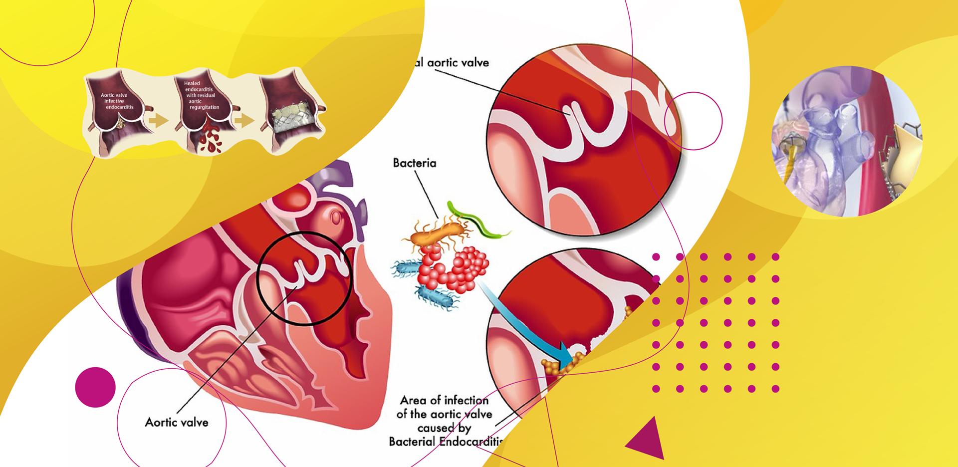 TAVI após Endocardite