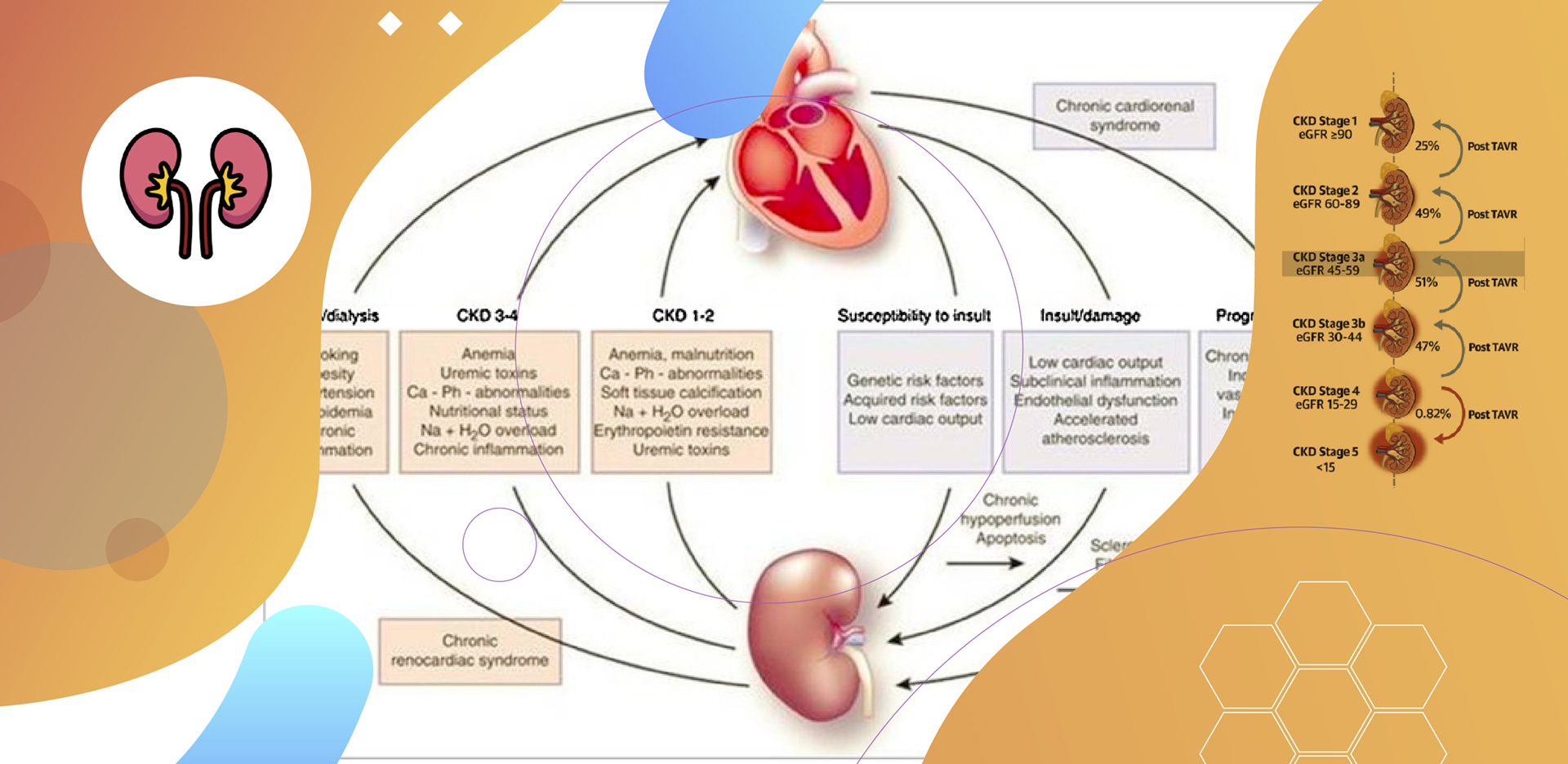 Doença Renal Crônica no TAVI