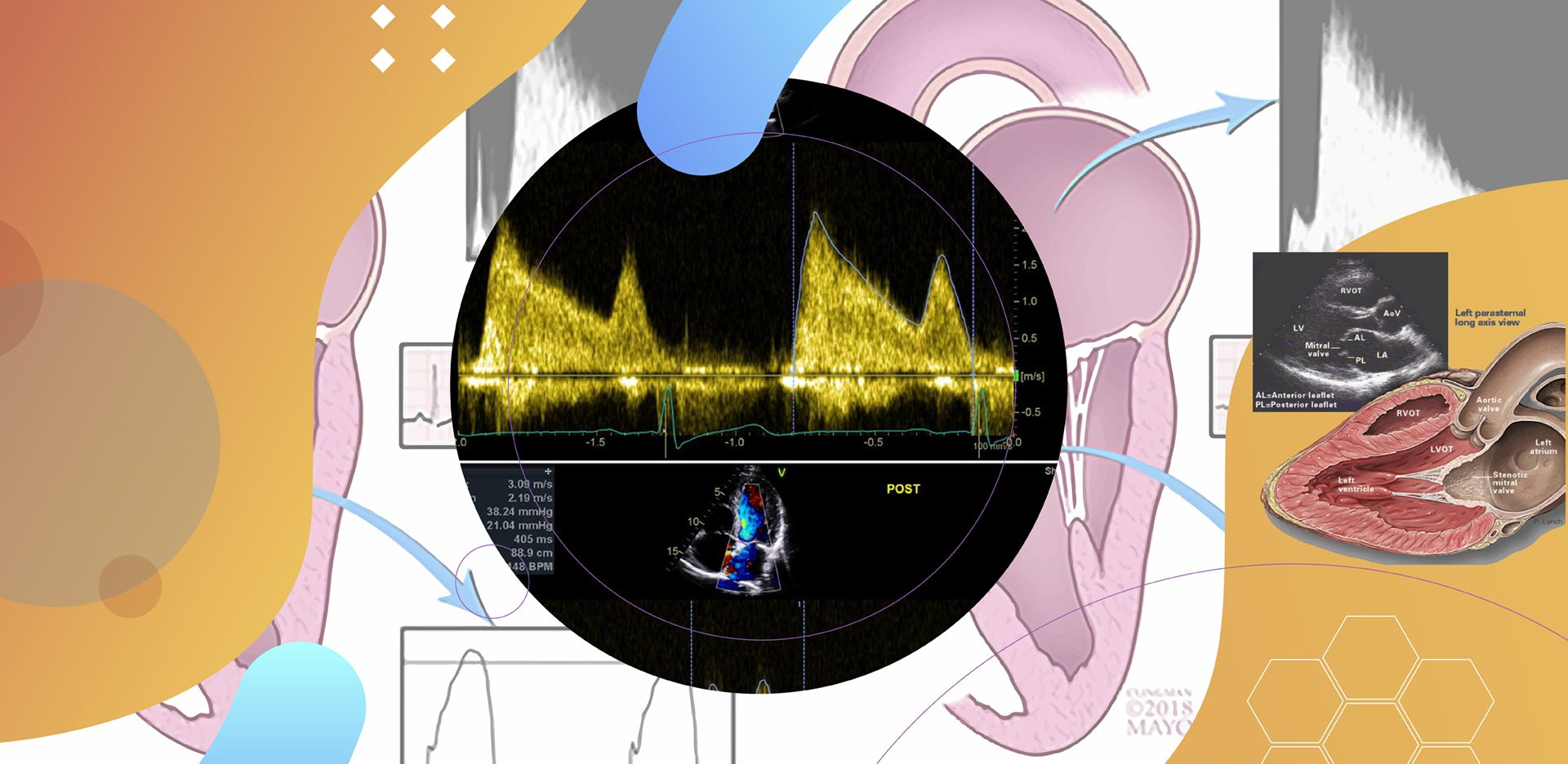 A ecocardiografia na Estenose Mitral